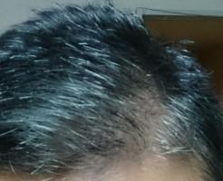 キラリで白髪を染める前
