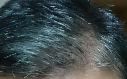 煌髪(キラリ)使用前の写真