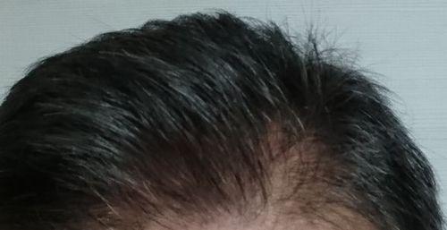 煌髪(キラリ)使用後の写真