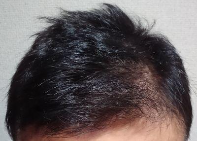 リライズ白髪用髪色サーバーの使用体験記